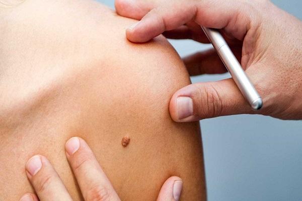 MT terá cerca de 3800 casos de câncer de pele em 2018